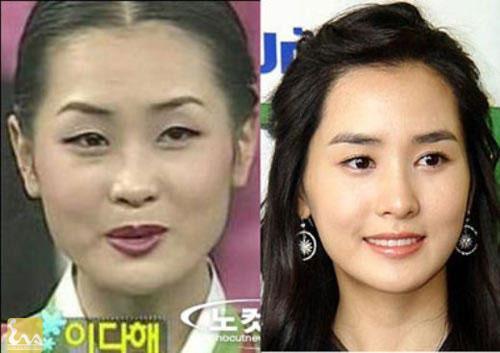 Lee Da Hee2 6556 1382068570 Showbiz Hàn và chuyện làm đẹp