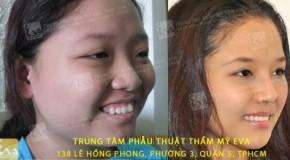Cắt mắt hai mí Hàn Quốc