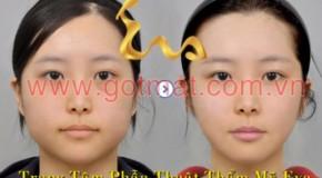 Phẫu thuật gọt mặt Egg-Line Hàn Quốc