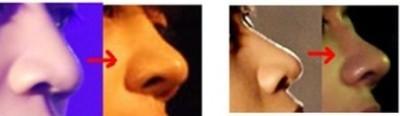 mui dep my nam han quoc 7 Soi mũi đẹp của 4 mỹ nam Hàn Quốc