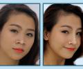 Thời gian phục hồi sau khi nâng mũi