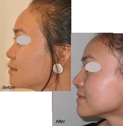 nang mui boc sun vanh tai 5 Nâng mũi sụn vành tai và sụn nhân tạo