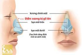 bien phap chinh mui go 2 Mũi gồ và biện pháp chỉnh sửa mũi gồ