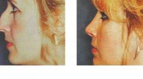Mũi gồ và biện pháp chỉnh sửa mũi gồ