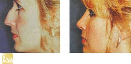 bien phap chinh mui go Mũi gồ và biện pháp chỉnh sửa mũi gồ