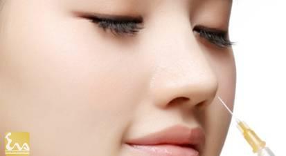 chat nang mui Những chất liệu được dùng trong nâng mũi bằng chất làm đầy