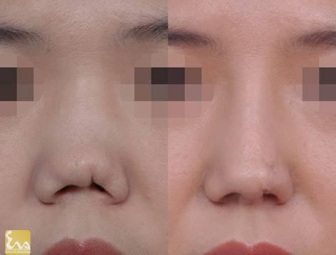 chinh sua mui di tat Chỉnh sửa mũi dị tật có khó không?