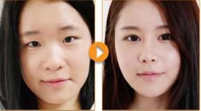 So sánh giữa nâng mũi phẫu thuật và nâng mũi không qua phẫu thuật