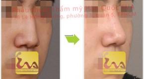 Hình ảnh chỉnh sửa mũi gồ