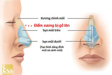 phau thuat mui go 11 Phẫu thuật mũi gồ, chỉnh mũi gồ