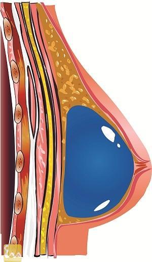 silicon long22 Tác hại khủng khiếp của silicon lỏng khi bơm ngực