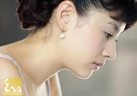 sua mui s line Thẩm mỹ Hàn Quốc Eva: Hội tụ tinh hoa về mũi đẹp SLine