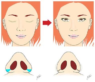 thu hep canh mui 1 Ưu điểm của phẫu thuật thu hẹp cánh mũi