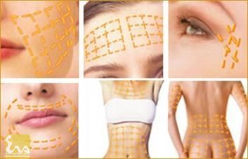 cang da mat bang chi vang Căng da mặt bằng chỉ vàng đem lại tuổi xuân cho phụ nữ