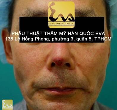 chinh sua mui hu 1 Phẫu thuật thẩm mỹ