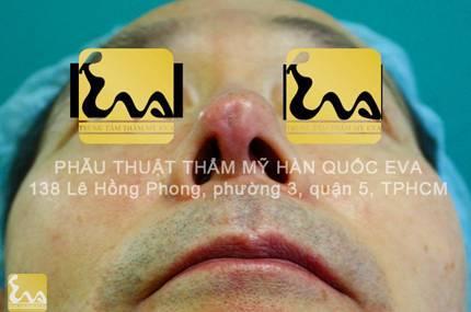 chinh sua mui hu 10 Phẫu thuật thẩm mỹ