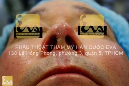 chinh sua mui hu 11 Phẫu thuật thẩm mỹ