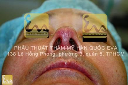 chinh sua mui hu 12 Phẫu thuật thẩm mỹ