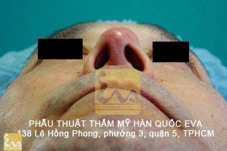 chinh sua mui hu 13 Phẫu thuật thẩm mỹ