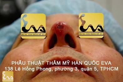 chinh sua mui hu 2 Phẫu thuật thẩm mỹ