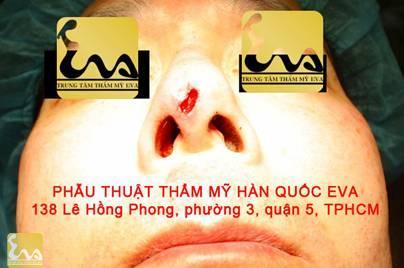 chinh sua mui hu 3 Phẫu thuật thẩm mỹ