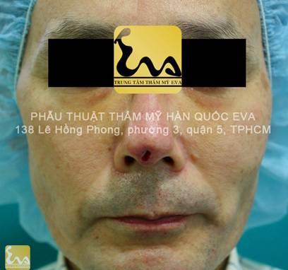 chinh sua mui hu 5 Phẫu thuật thẩm mỹ