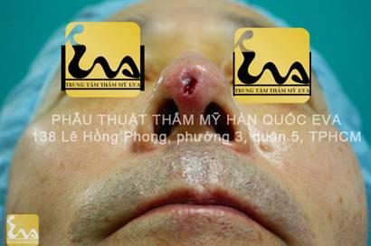 chinh sua mui hu 6 Phẫu thuật thẩm mỹ