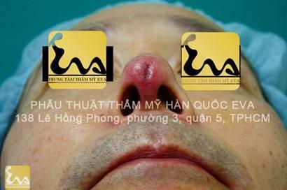 chinh sua mui hu 7 Phẫu thuật thẩm mỹ