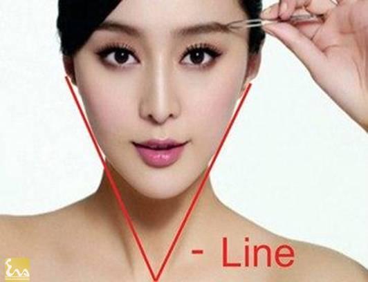 cong nghe tiem botox thu gon goc ham tao guong mat v line 1 Công nghệ tiêm Botox thu gọn góc hàm tạo gương mặt V line