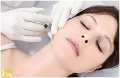 cong nghe tiem botox thu gon goc ham tao guong mat v line 2 Công nghệ tiêm Botox thu gọn góc hàm tạo gương mặt V line