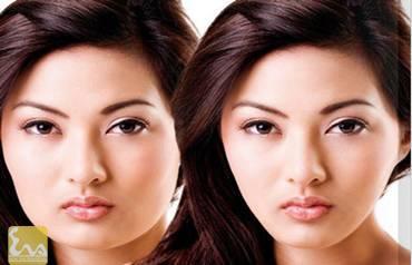 cong nghe tiem botox thu gon goc ham tao guong mat v line 3 Công nghệ tiêm Botox thu gọn góc hàm tạo gương mặt V line