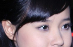 Lịch sử của tạo hình mũi