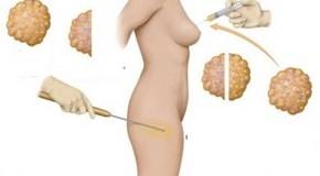 Nâng ngực bằng mỡ tự thân