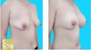 Phẫu thuật chỉnh sửa vú không đạt yêu cầu sau đặt túi độn