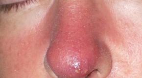 Nhiễm trùng trong phẫu thuật mũi
