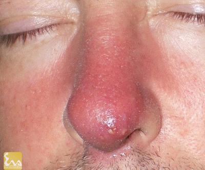 nhiem trung trong phau thuat mui Nhiễm trùng trong phẫu thuật mũi