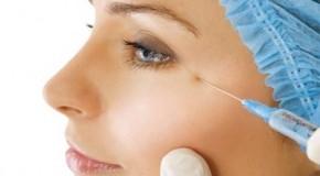 Tìm hiểu về phương pháp tiêm botox xóa nếp nhăn trán và đuôi mắt