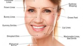 Xóa nếp nhăn trên khuôn mặt bằng botox