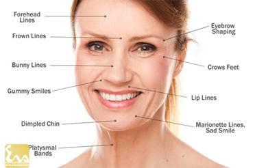 xoa nep nhan tren khuon mat bang botox 1 Xóa nếp nhăn trên khuôn mặt bằng botox