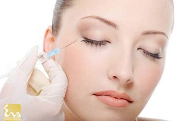 xoa nep nhan tren khuon mat bang botox 2 Xóa nếp nhăn trên khuôn mặt bằng botox