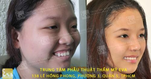 chinh ho loi 500x261 Chỉnh hở lợi – niềm hy vọng mới