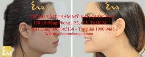 don cam han quoc 2 500x196 Phẫu thuật thẩm mỹ