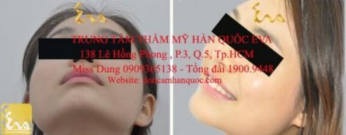 don cam han quoc 3 500x196 Phẫu thuật thẩm mỹ