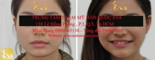 don cam han quoc 500x196 Phẫu thuật thẩm mỹ