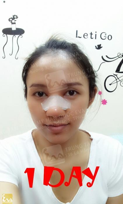 phau thuat mui go after 1day Nhật ký phẫu thuật mũi gồ