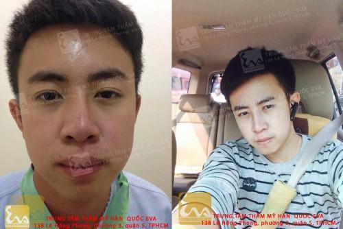 sua mui lech before after 500x334 Phẫu thuật nâng mũi Hàn Quốc cho nam giới như thế nào?