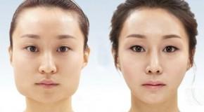Gọt xương hàm làm thon gọn gương mặt
