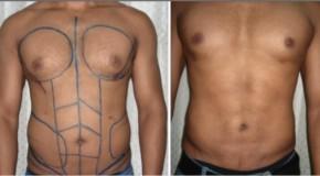 Tạo hình bụng 6 múi cho nam giới