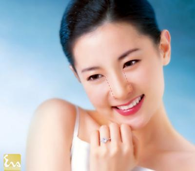 mui dep lee young ae11 Mũi Đẹp Lee Young Ae