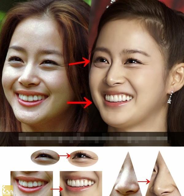 ro nghi van kim tae hee sua mat nang nguc24 Nghi Án Kim Tae Hee sửa mắt, nâng ngực